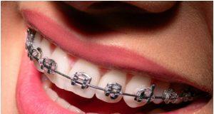 pendakap gigi braces
